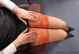 «سندرم پوست برشته» و عقیم شدن از عواقب استفاده زیاد از لپ تاپ