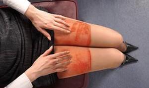 «سندرم پوست برشته» و عقیم شدن از عواقب استفاده زیاد از ...