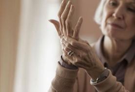 آشنایی با علائم آرتریت پسوریازیس
