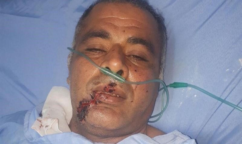 محیطبان شهرستان امیدیه خوزستان حین گشتزنی مورد اصابت گلوله سرنشینان مسلح یک خودروی ناشناس قرار گرفت