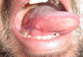 زخمهای بیش از ۱۵ روز در دهان را جدی بگیرید