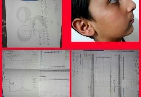 (تصویر) سیلی ناظم، گوش دانش آموز شوشی را پاره کرد!