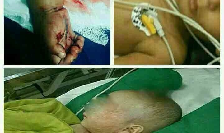 عکس دلخراش از آزار کودک ۱۸ ماه در سیرجان کرمان