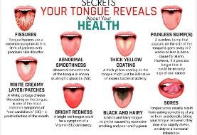 آنچه زبان شما درباره سلامتیتان میگوید!