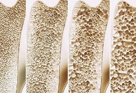 کدام استانها بیشترین مبتلایان به پوکی استخوان را دارند؟