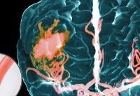 ۷ عامل سکته مغزی که باید از آنها دوری کرد