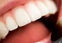 تاثیر باکتریهای دهانی بر افزایش اختلالات رودهای