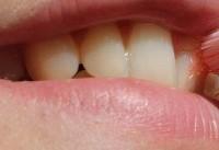 کشف ارتباط بین باکتریهای دهانی و اختلالات روده