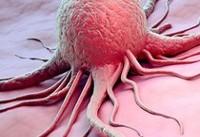 از ارتباط بین رشد تومورهای سرطانی و تمایلی  به خوردن شیرینی چه می دانید؟