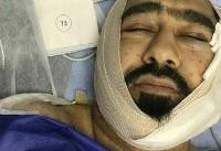 حمله با قمه به یک روحانی در تهران + عکس