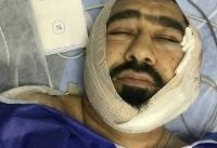 حمله خونین به یک طلبه در شرق تهران/ ضارب: شیطان به من الهام کرد (+ عکس)