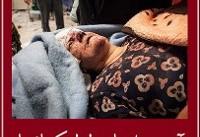 تلفات زلزله؛ ۴۴۵ کشته، ۷۱۰۰ مجروح | جزئیات جدید از تلفات زلزله کرمانشاه