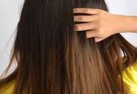 پرمویی صورت در خانمها؛ علل و روشهای مقابله