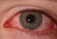 لکه های قرمز داخل چشم چه پیام هایی درباره سلامتی شما دارند؟