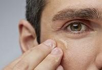 با این چند ترفند از خشکی پوست در زمستان جلوگیری کنید!
