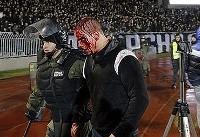 این اتفاقات خونین در دربی بلگراد عادی است! +تصاویر