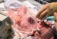 (تصاویر) نجات نوزادی که قلبش بیرون بدنش بود