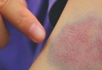 آیا کم خونی به شکل گیری کبودی منجر میشود؟