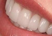 چند راهکار ساده خانگی برای سفید کردن دندان ها