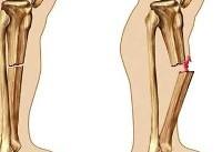 علت شکننده شدن استخوان چیست؟