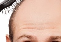 سفیدی و ریزش مو با بیماری قلبی ارتباط دارد