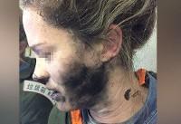 انفجار هدفون در هواپیما صورت دختر جوان را سوزاند