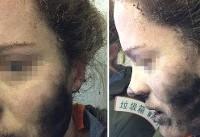 سوختگی صورت مسافر هواپیما به دلیل انفجار هدفون