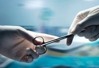 قصور پزشکی؛ از کیارستمی تا دست چپی که اشتباهی جراحی شد