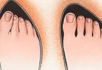 نکته بهداشتی: آسیبهای کفش تنگ