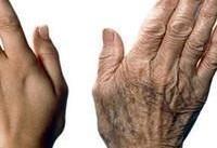 غذاهایی که شما را پیرتر از سنتان نشان میدهند
