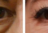 علت پف دور چشم چیست؟