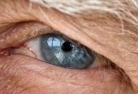امکان تشخیص آلزایمر با معاینه چشم