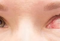 ۱۰ روش درمان خانگی عفونت چشم، علل ایجاد و انواع آن