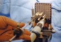 براکی تراپی؛ شیوه ای موثر در درمان سرطان