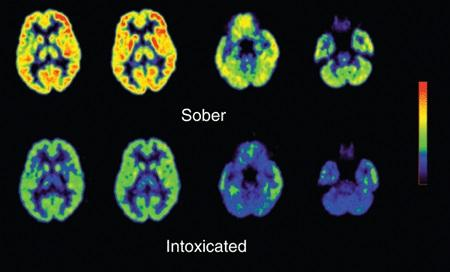 What Causes Loss Of Memory When Drinking Alcohol