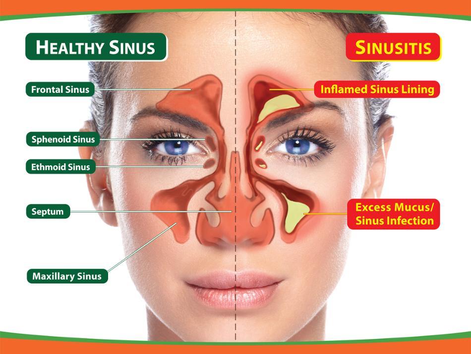 How I Found a Natural Sinus Cure - kodoom com - Kodoom