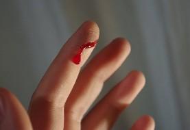 چند نکته درباره بریدگی انگشت با کاغذ