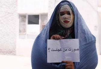 پای صحبت آرایشگر زیبای تبریزی قربانی اسید پاشی: شب ...