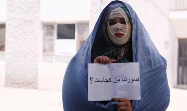 پای صحبت آرایشگر زیبای تبریزی قربانی اسید پاشی: شب خواستگاری و قبل ...