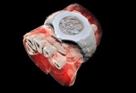 تهیه اولین تصاویر رنگی سه بعدی با استفاده از اشعه ایکس از بدن انسان