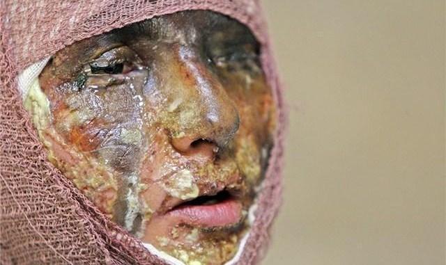 شیوع فرهنگ قلدری: یک قربانی دیگر اسید پاشی در ایران این بار دانش آموز ۱۱ ساله!