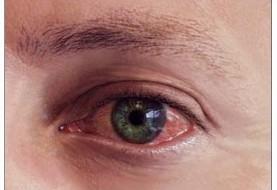 عفونت چشمی ناشی از لنز تماسی موجب نابینایی می شود