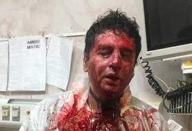 عکس ضرب و شتم شدید متخصص بیهوشی توسط همراهان بیمار به دنبال فوت یک بیمار مبتلا به کرونا در آذربایجان غربی