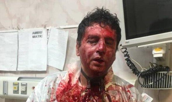 عکس ضرب و شتم شدید متخصص بیهوشی توسط همراهان بیمار به دنبال فوت یک ...