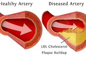 کلسترول بالا رشد تومورهای سرطانی را ۱۰۰ برابر افزایش میدهد