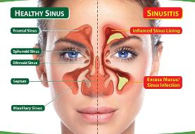 سینوزیت و باکتری های خوب بینی/ تشخیص آلزایمر با چشم ها