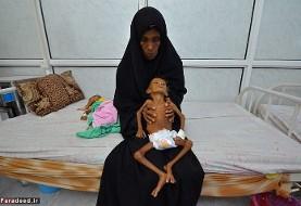 گرسنگی جان پنج میلیون کودک یمنی را تهدید میکند