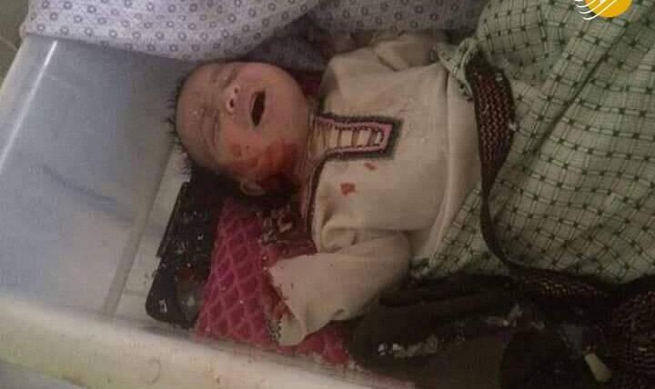 افغانستان مظلوم باز غرق در خاک و خون : انفجار طالبان در مرکز ولایت زابل و یک بیمارستان بیش از صد کشته و زخمی بر جای گذاشت