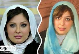 انتشار دردسرساز تصاویر قبل و بعد عمل زیبایی یک زن توسط کلینیک زیبایی جنت آباد