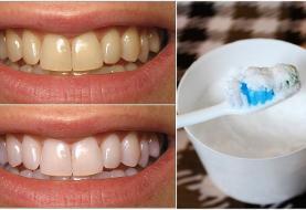 ارتباط ازدست دادن دندان ها در سنین بزرگسالی و بیماری قلبی